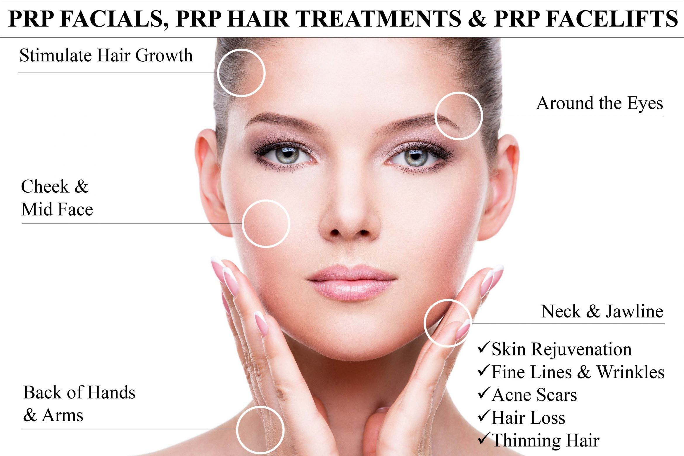 Micro-Needling with PRP – Elements Salon And Wellness Spa